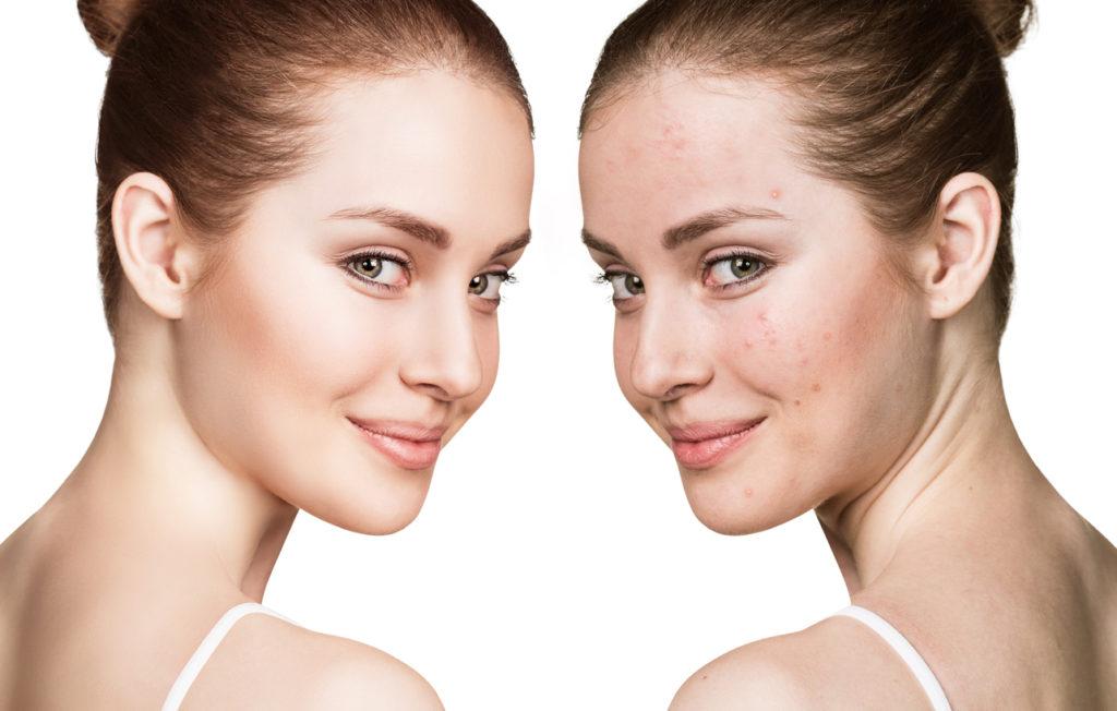 akne kemisk peeling före och efter