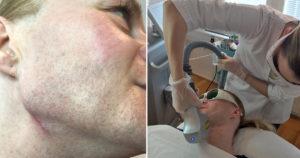 diodlaser transsexuella felicia hårborttagning laser victus clinic