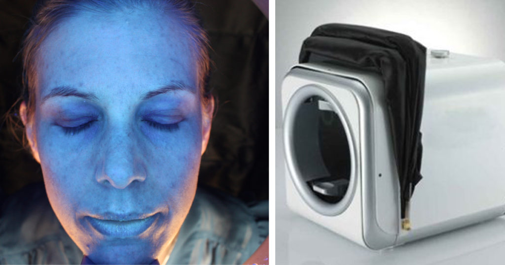 hudårdsanalys, derma scanner, victus clinic, hud, hudterapeut