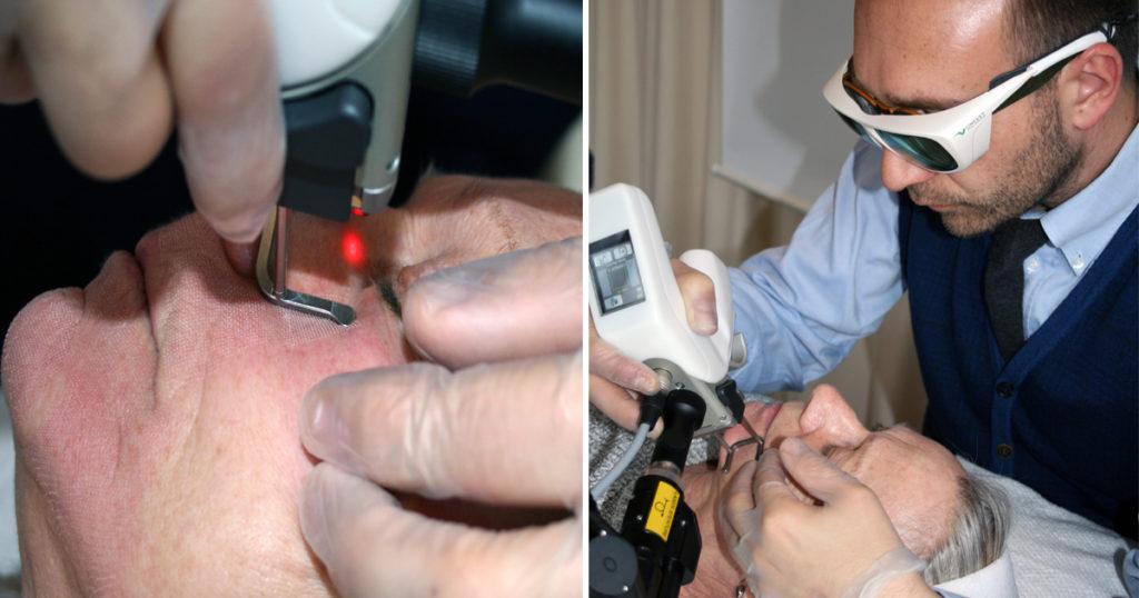 djupa rynkor, laserbehandling, dioxium advanced, victus clinic, laser