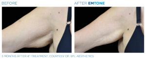 reducering av slapp hud med Emtone