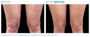 cellulitreducering med Emtone